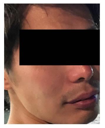 男性の肌トラブルサポート